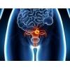 Лечение рака эндометрия (рака тела матки) .  Лечение в Китае.